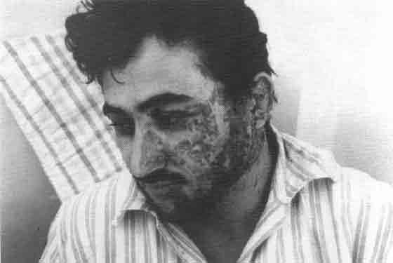 Photo of a severley disfigured Iraqi soldier